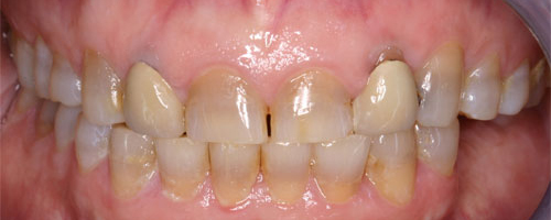 Photo of mouth before getting anterior crowns at Dallas Prosthodontics in Dallas, TX