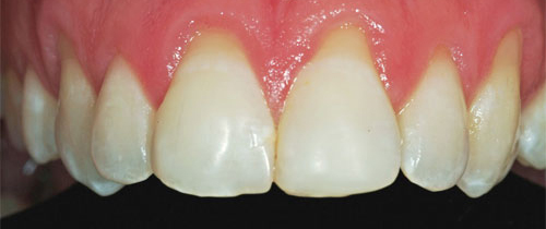 Photo of mouth before getting ceramic veneers at Dallas Prosthodontics in Dallas, TX