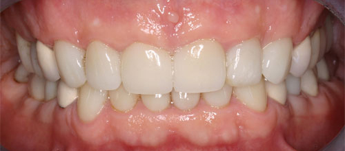 Photo of mouth after full mouth reconstruction procedure at Dallas Prosthodontics in Dallas, TX