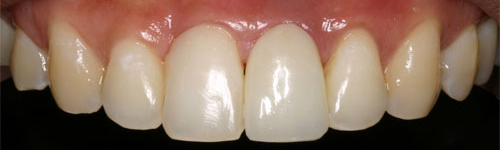 single tooth replacement after 3 uniform